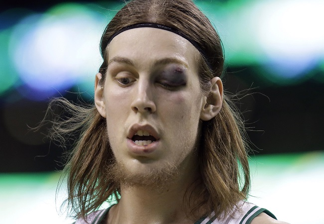 Image result for Kelly Olynyk Ugly